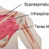 What is a Rotator Cuff and have I torn it?
