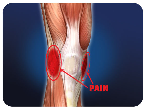 meniscal injuries This page contains the article diagnostic imaging of meniscal injuries http://www chiroorg/radiology/abstracts/meniscusshtml.